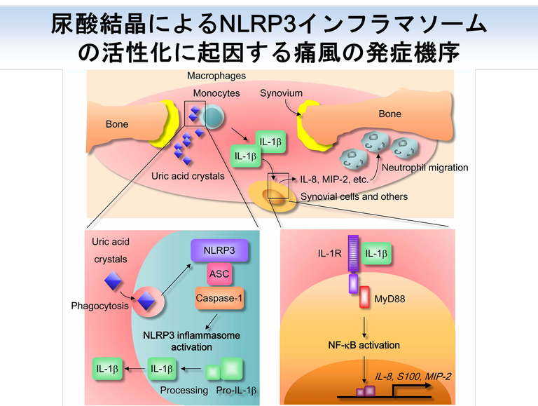 尿酸結晶によるNLRP3異常活性化を示す図