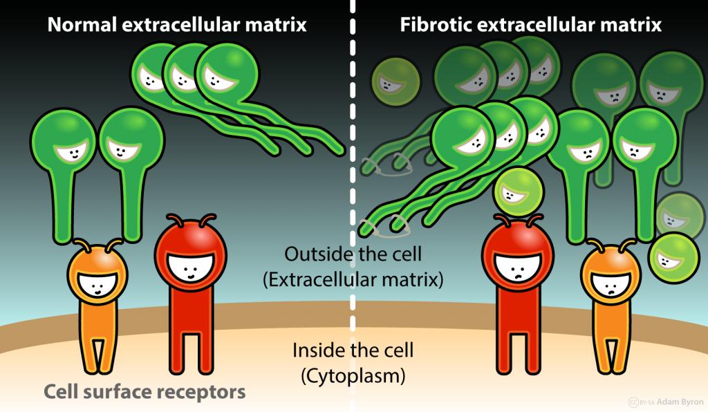 細胞外マトリックスの過剰産生を示す図