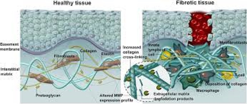 間質細胞の増殖を示す図
