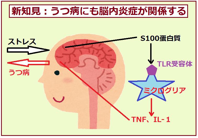 うつ病の病態に脳内の慢性炎症が関与することを示す図