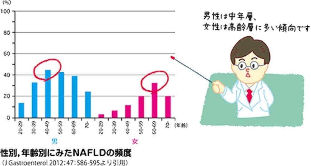 女性はNASHが50歳代から急増することを示すグラフ