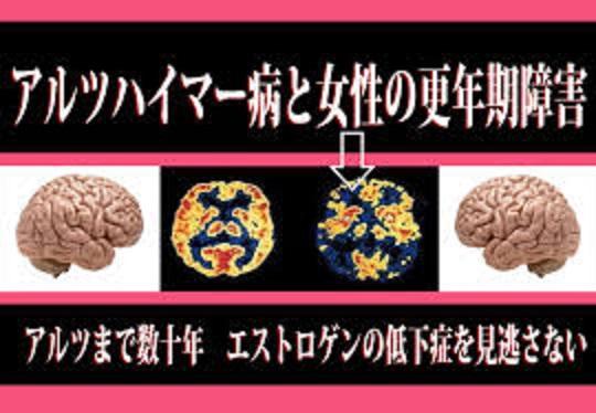 閉経後に認知障害を伴う疾患になる可能性が高くなることを示す図