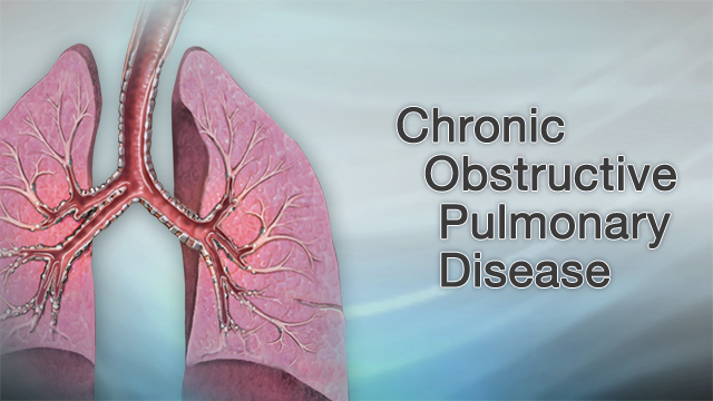 COPDとは?