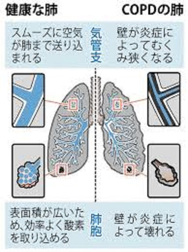 肺胞レベルでの破壊について説明する図