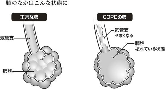 吸った空気が溜まってしまう状態を説明する図