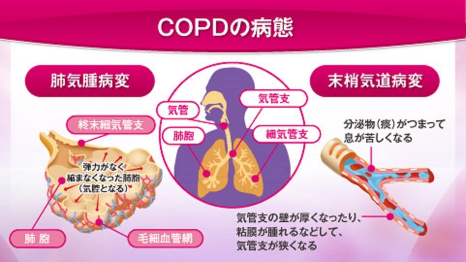 COPDの肺のさまざまなレベルで病理的変化を示す図