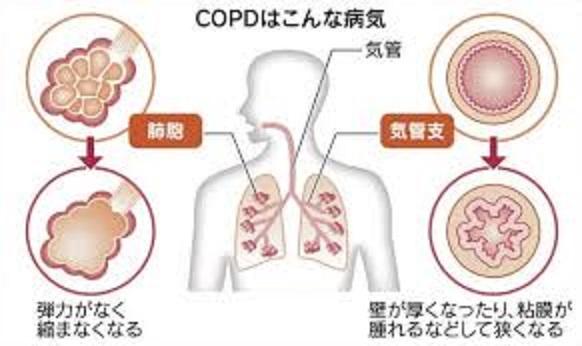 COPDの気管支 肺胞の状態を説明した図