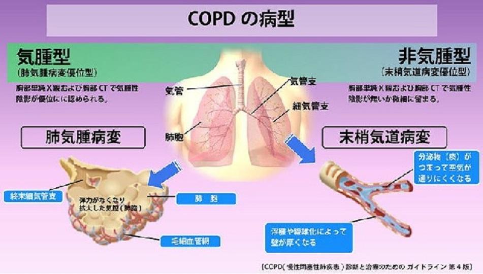 病型分類を示した図