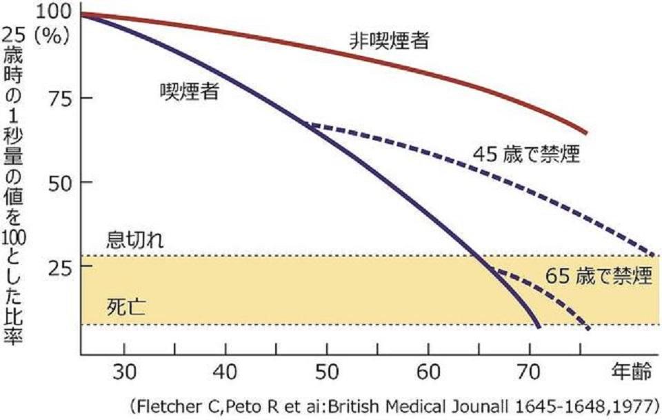 COPDの進行にともなう喫煙者の呼吸機能の加速度的低下を示すグラフ