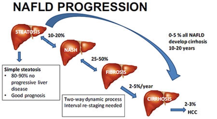 NASHから肝硬変への進展について説明した図