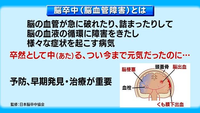 脳卒中・ヤワな神経細胞