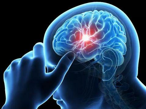 脳の血管に障害が起こっている様子