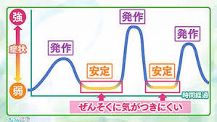 気道狭窄症状の変動性を示す図