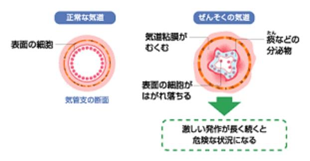 気道の浮腫を示す図