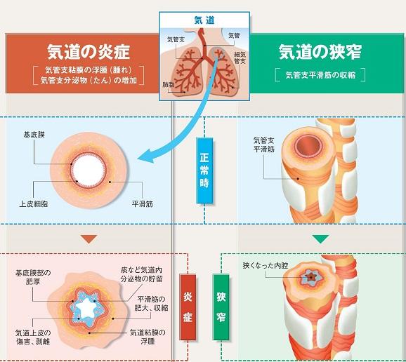 気道の分泌亢進を示す図