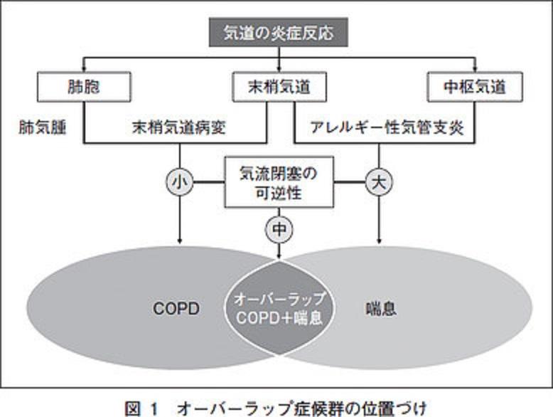 気管支喘息とCOPDの合併についてまとめた図
