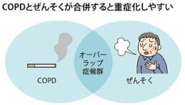 気管支喘息とCOPDの合併は重症化しやすいことを説明する図