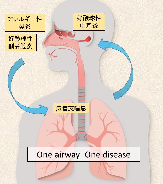 アレルギー性鼻炎と喘息の合併について説明する図