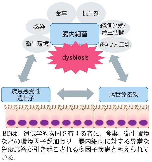IBDでの腸内細菌叢の乱れを説明する図