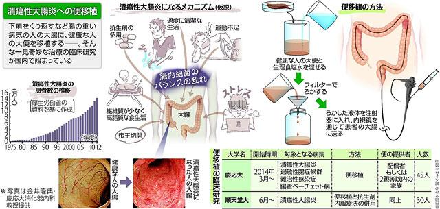 健康人の腸内細菌叢(糞便)の移植による治療を説明する図