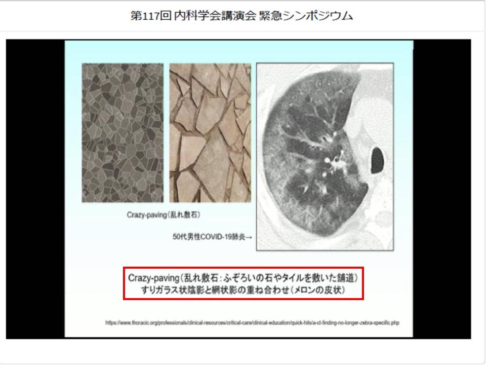 CTで見られる特徴的な肺炎像その2
