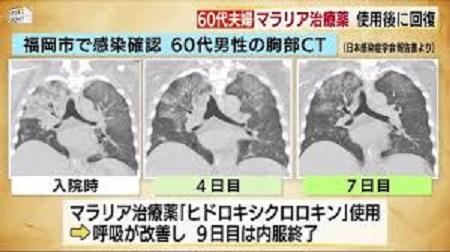 CTで肺炎像の変化を示す図