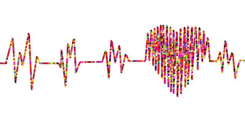 不整脈を示す心電図