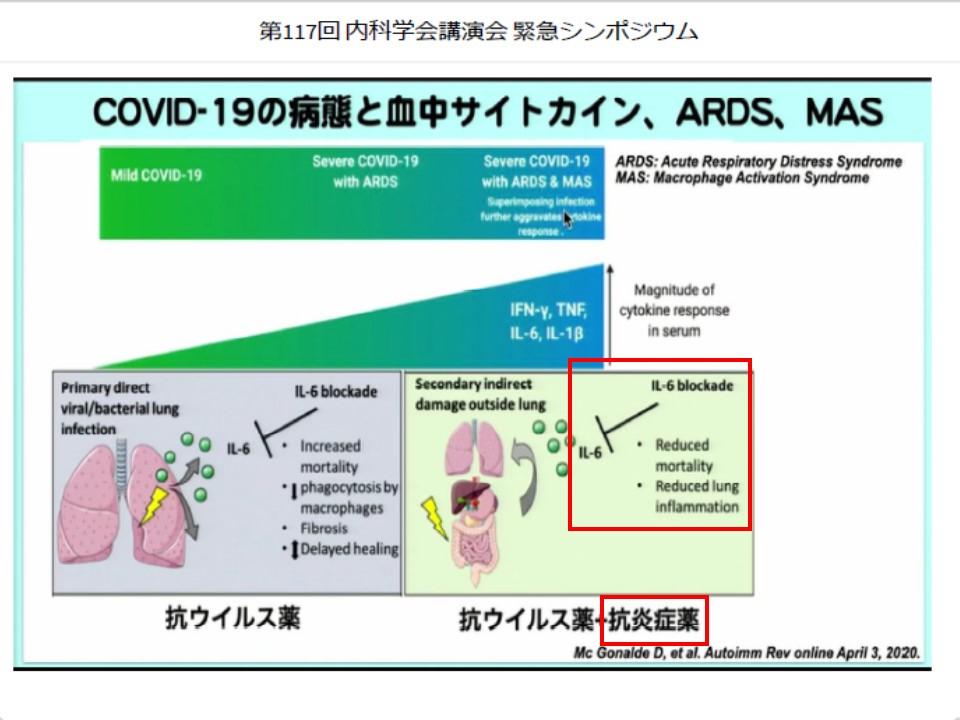後期の抗炎症薬治療を示す図