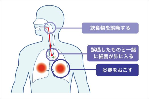 誤嚥性肺炎について説明する図