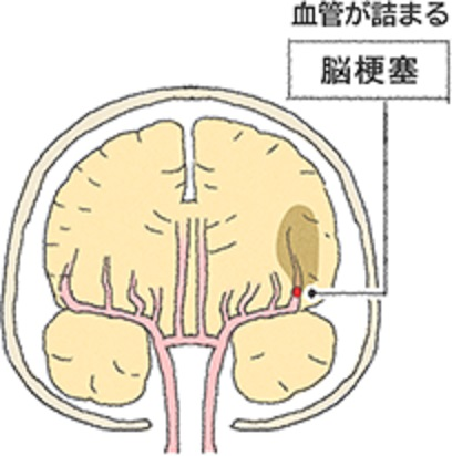 脳の血管の詰まりにより脳梗塞が生じることを説明する図