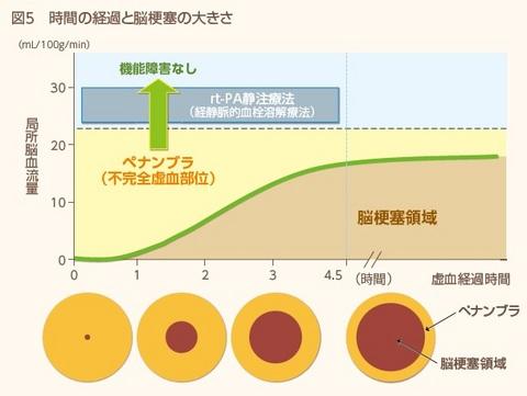 ペナンブラ領域が時間経過とともに減少することを示す図