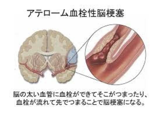 アテローム血栓性梗塞を起こした血管内の様子