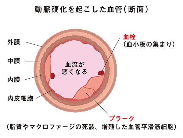 血小板血栓が形成される様子
