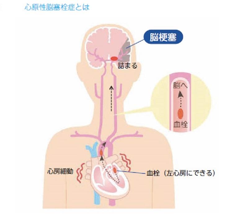 心房細動による心原性脳塞栓症について説明する図