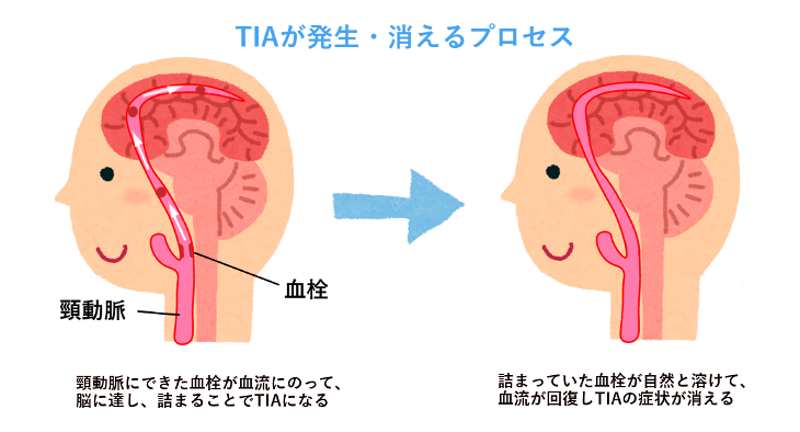 TIAの発症機序ついて説明した図