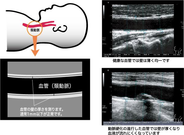 頸動脈の超音波検査と所見