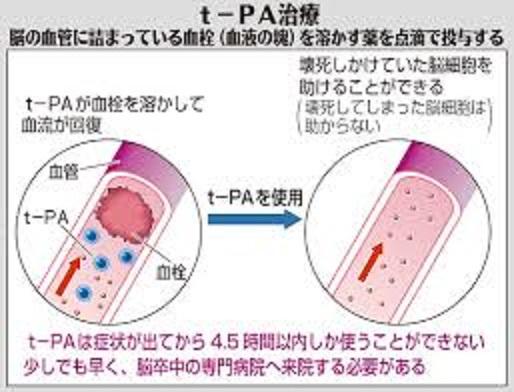 血栓溶解療法について説明した図