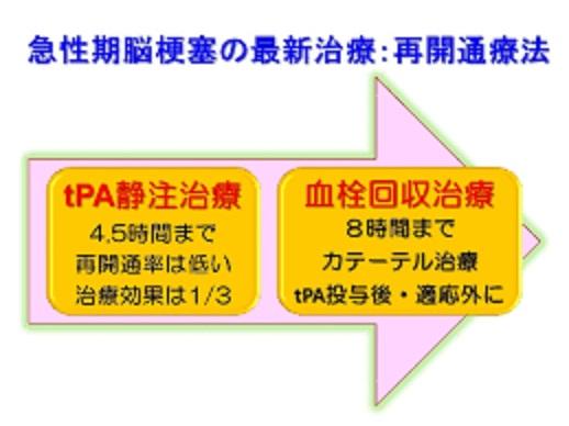 血栓回収療法について説明した図