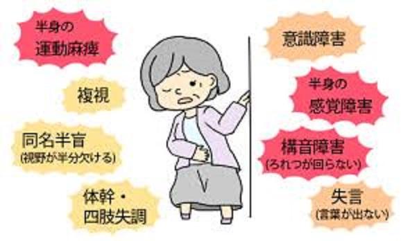 食事 歩行 衣服の着脱 排泄などの支障を示すイラスト
