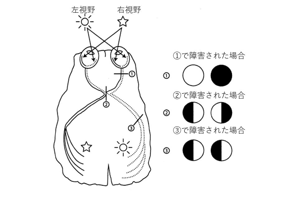 視野障害について説明する図