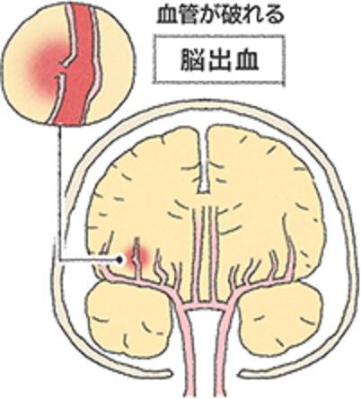 脳出血について説明する図