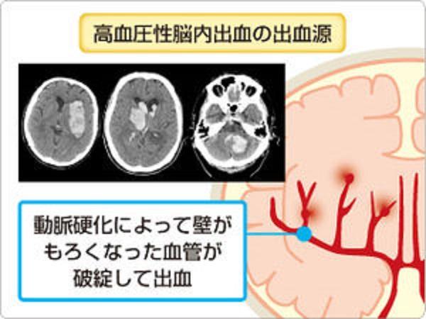 脳出血の発症機序を説明する図