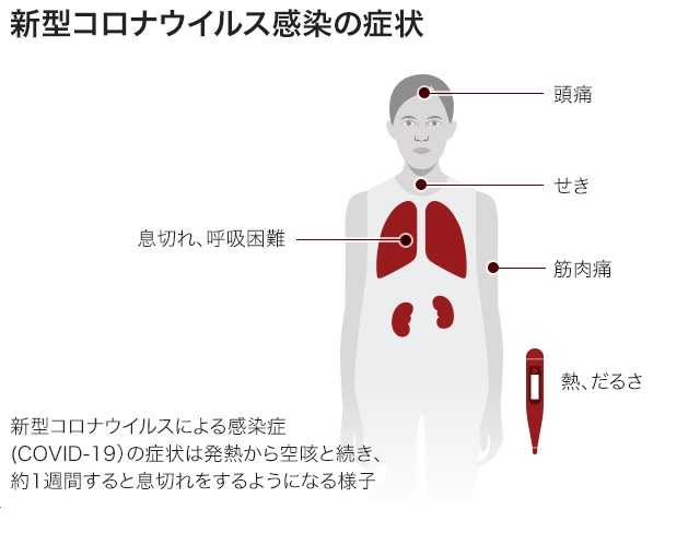 COVID19感染により起こる症状をまとめた図