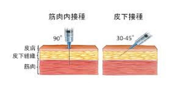 皮下接種 筋肉注射について説明する図