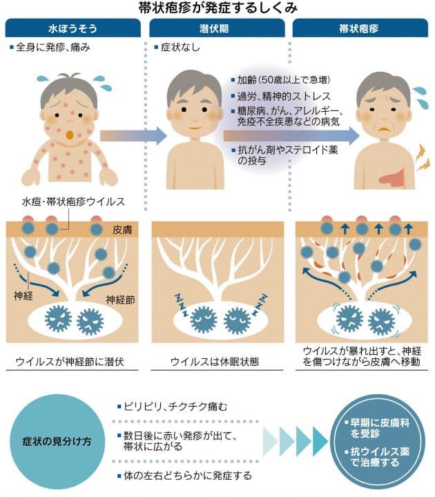 帯状疱疹の再発を示す図