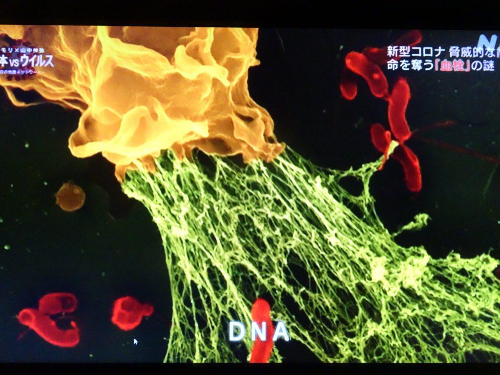 免疫細胞が自らのDNAを網の目のように周囲に放出している図