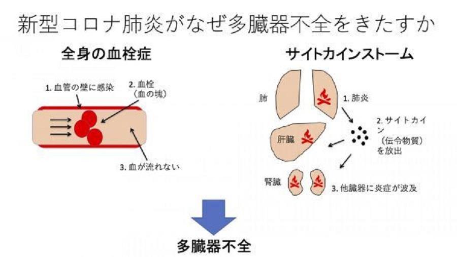 サイトカインストーム 血栓形成と重症化の関連を示す図