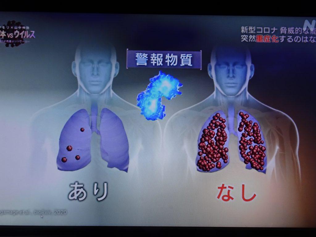 重症化例ではインターフェロン産生量が低いことを示す図