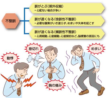 不整脈の種類と症状
