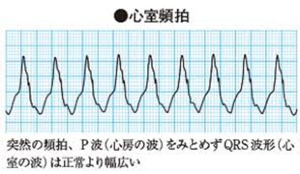 心室性の頻脈性不整脈